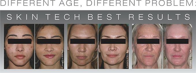 skin-tech-people-results