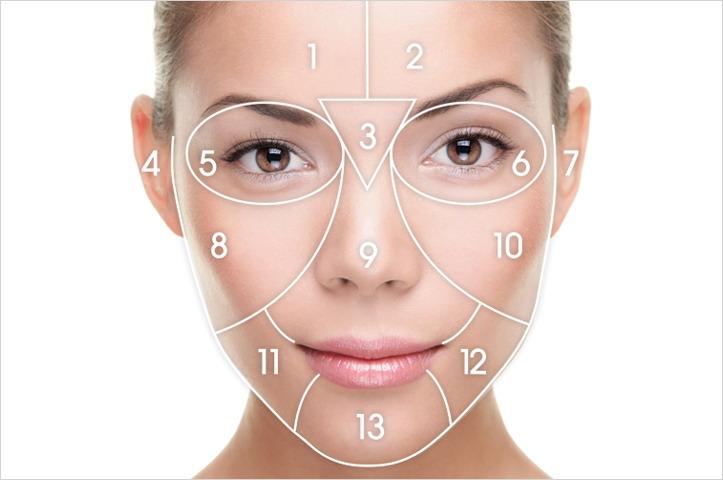 Facelift diagram | Fourways Aesthetic Centre